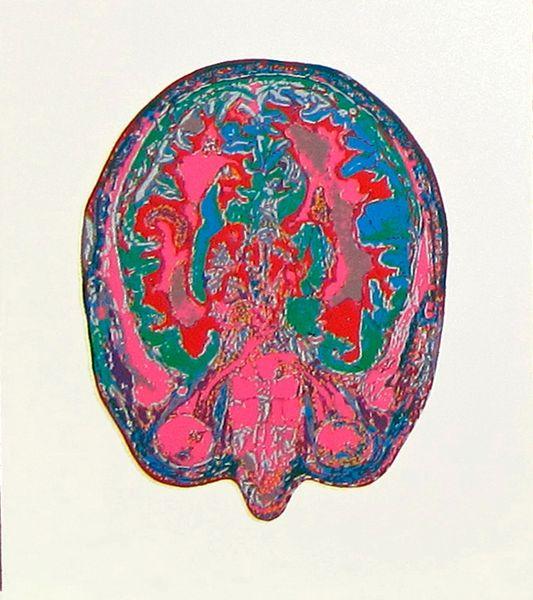 Cerveaux série 1 n°2